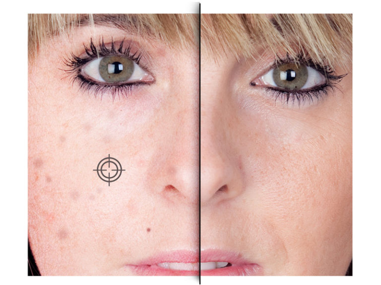 Flawless and Instant Retouching tool